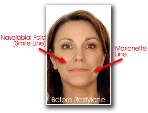 restylane-before